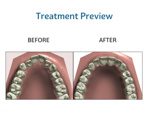 before and after treatment preview