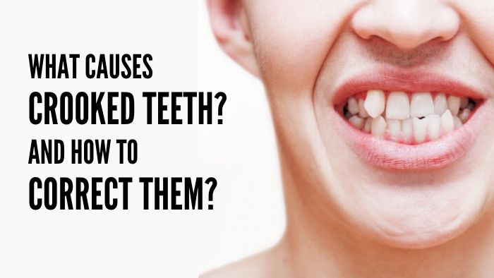 What causes crooked teeth And how to correct them