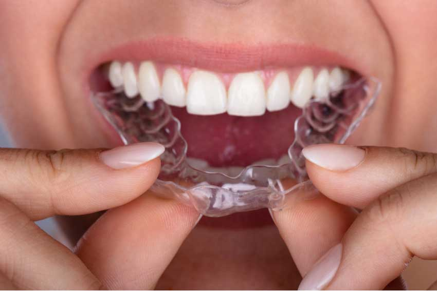 Want Straighter Teeth? Let's Talk Clears Aligners