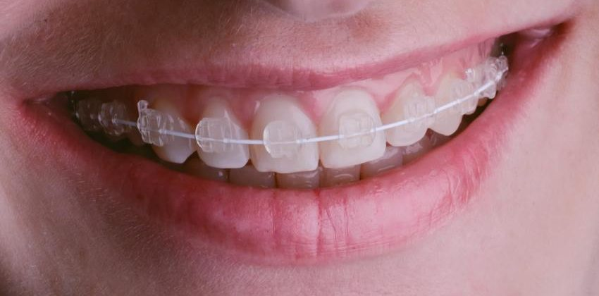 What Type of Clear Braces Are the Best