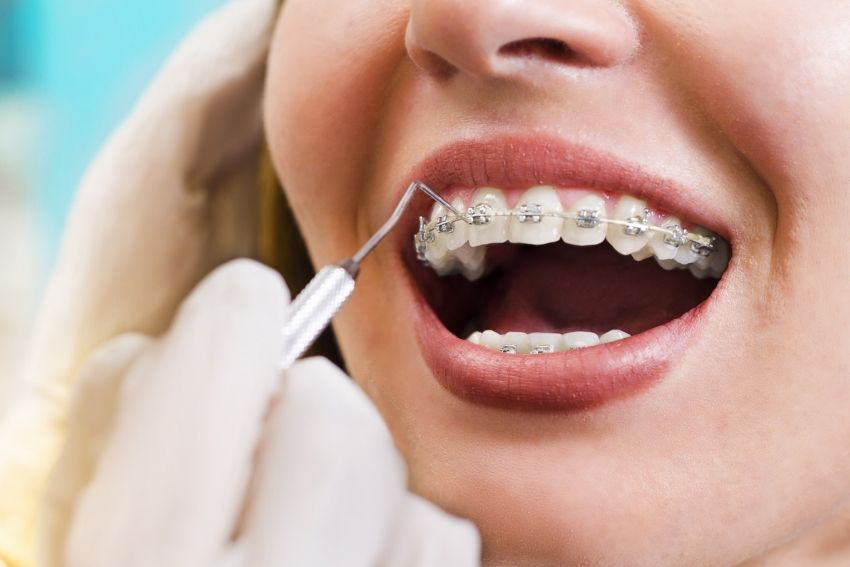 The Cost of Braces in Canada-What You Need To Know