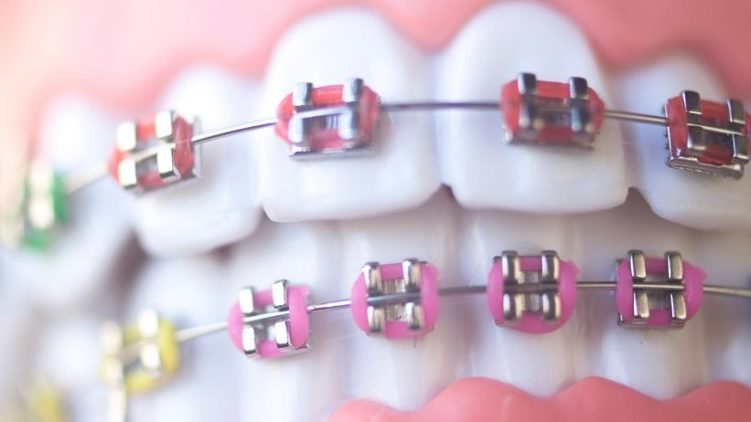 Overbite - How to Fix Without Braces
