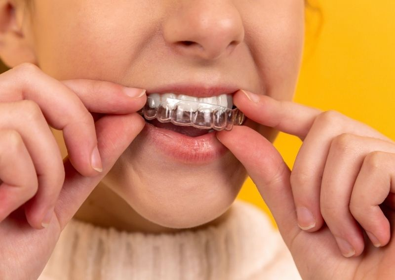 Quicker Than Braces - Clear Aligners From AlignerCo
