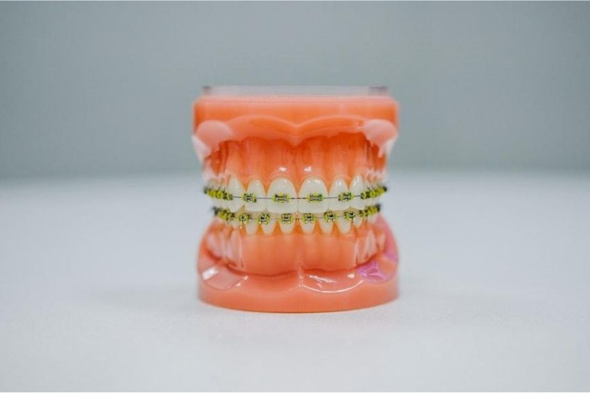 How Long Do Braces Hurt After Getting Them On